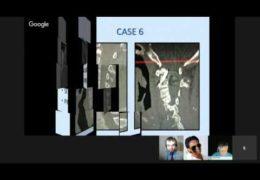 "LIVE HANGOUT, Bernardo de Andrada MD, Brazilian Neurosurgon, ""Case Presentations"""