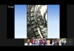 "Bernardo de Andrada MD, on ""Cervical Spine Disorders"""