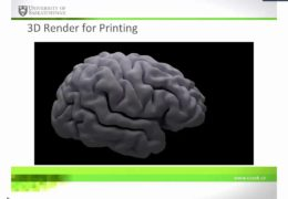 Thinking in 3D: Printing the Brain for Pre-Surgical Planning