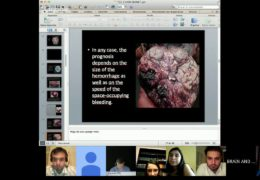 Victor Hugo Perez Perez MD did a Live Brain Dissection this past Sunday for Students