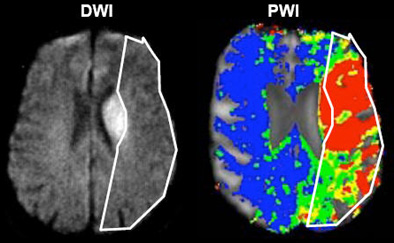 Tumor Paint lights the way for surgeons during brain surgery