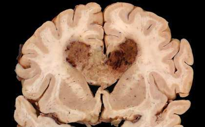 Regression of Glioblastoma after Chimeric Antigen Receptor T-Cell Therapy