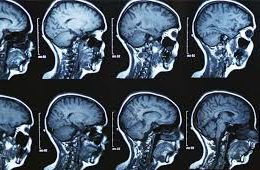 Scientists validate biomarker indicative of brain cancer patient's prognosis and drug response