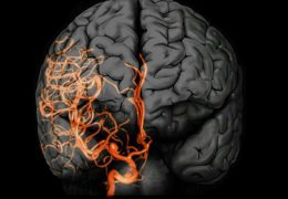 Researchers use sound and visuals to simulate blood-flow patterns of brain aneurysms