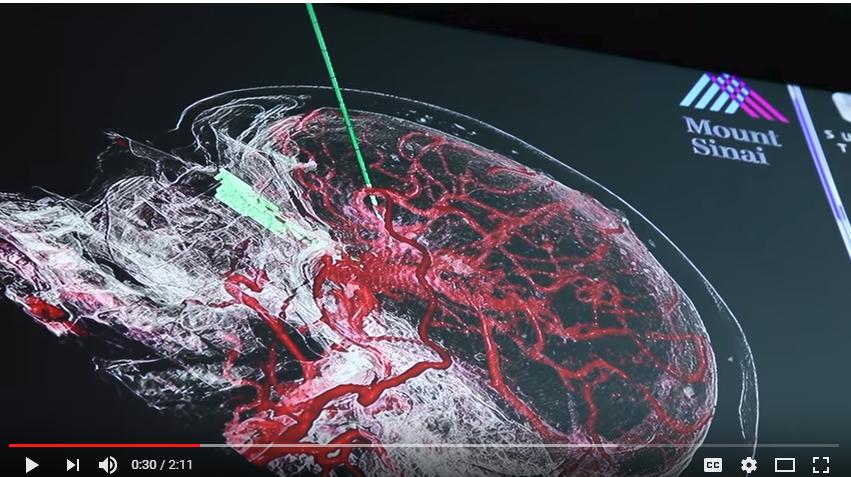 Mount Sinai Neurosurgeon First to Use Microscope Imaging System That Integrates Virtual Reality Technology