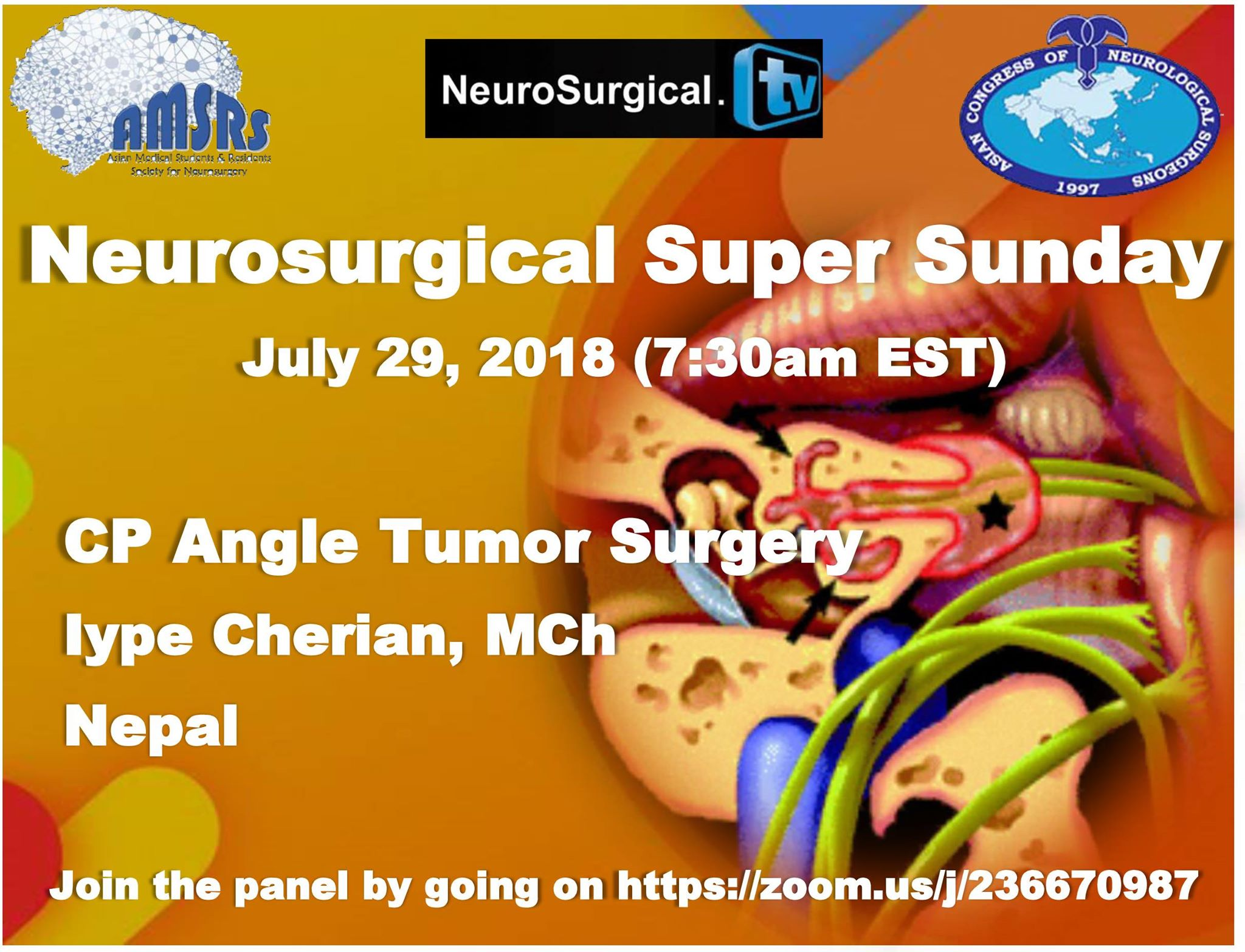 """CP Angle Tumor Surgery"" for Neurosurgery Super Sunday"
