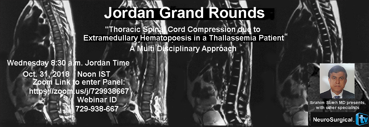 Jordan Neurosurgery Grand Rounds Recorded here,  with Ibrahim Sbieh MD, a Multidisciplinary Approach