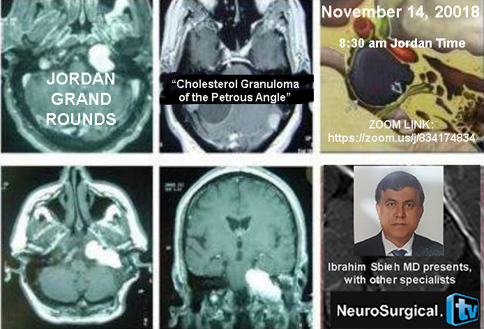 "Recorded, yesterday,  Jordan Grand Rounds: ""Cholesterol Granuloma of the Petrous Angle"": Multidisciplinary Approach"
