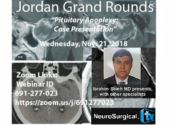 "Today's Recorded:   Jordan Grand Rounds, November 21, 2018: ""Pituitary Apoplexy"" with Ibrahim Sbeih MD of Jordan"