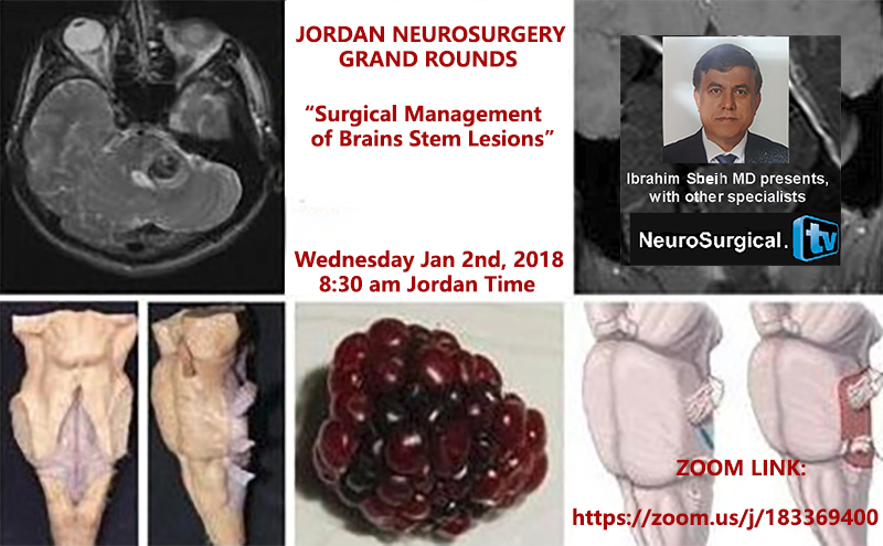 "Jordan Neurosurgery Grand Rounds: Recorded LIVE today;  Multidisciplinary: ""Surgery on Brain Stem Lesions"""
