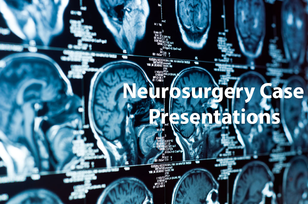 "New Neurosurgery Group Created on Facebook: ""Neurosurgery Case Presentations"""