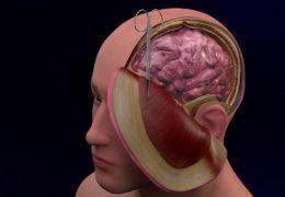Promoting better understanding, treatment of traumatic brain injury