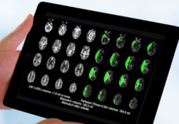 Brain-scan guided emergency stroke treatment can save more lives