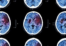 Teaching hospitals take the lead in stroke treatment