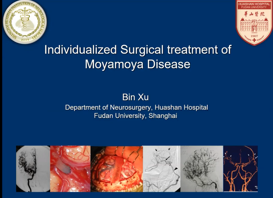 Xu Bin MD, Prominent Chinese Neurosurgeon, NOW presenting…….