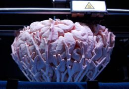 3D Bioprinting Personalized Brain Tissues