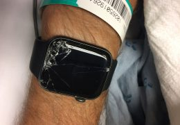 Use of SmartWatch shows Potential of technology in Head Trauma and Remote Monitoring