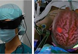 Augmented Reality in Neurosurgery: A Review of Current Concepts and Emerging Applications