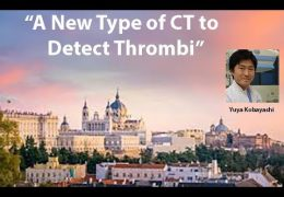 """""""A New Type of CT to detect Thrombus"""", Japanese Neurologist presented LIVE a few days ago…………."""