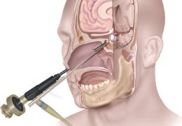 EANS Warns Neurosurgeons about some types of Emergency Neurosurgical Surgery, including Transphenoid Approaches
