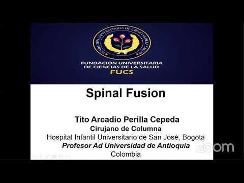 """VIVO, AHORA, """"Fusion Espinal"""" de Colombia con Tito Perrilla MD, Cirujano de Columna, Hospital Infantil Universitario de Bogota"""