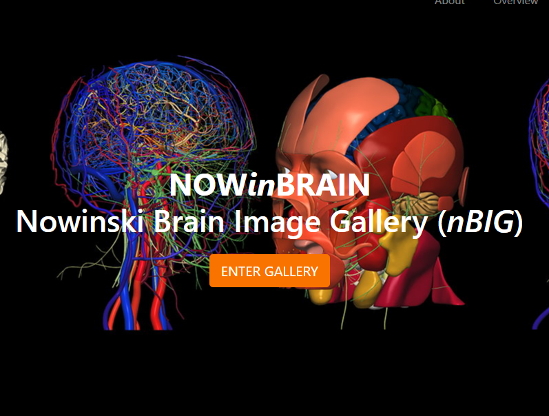 See the excellent Nowinski Brain Image Gallery (nBIG) of Brain Images at www.nowinbrain.org
