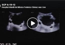 """VIVO, de Hospital Infantil, de DF, Mexico, """"Casos Clinicos de Patologia"""", hoy, Feb 10, 2021"""