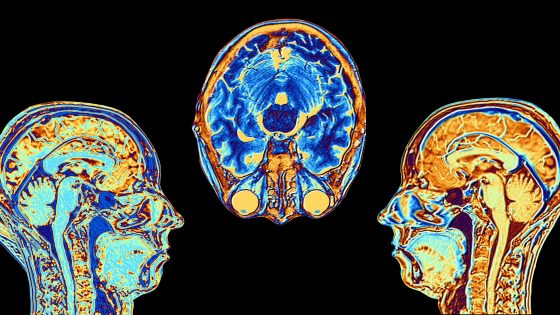 Computer enhanced false-colour Magnetic Resonance Images (MRI) of two mid-sagittal and one axial (cross sectional) sections through the head of a normal 46 year-old woman, showing structures of the brain, spine & facial tissues. Profiled features of the main part of the brain include the convoluted surface of the cerebral cortex, the corpus callosum, pons & medulla, structures of the brainstem, which are continuous with the spinal cord. The cerebellum, the centre of balance & coordination, lies to the right of the brainstem.