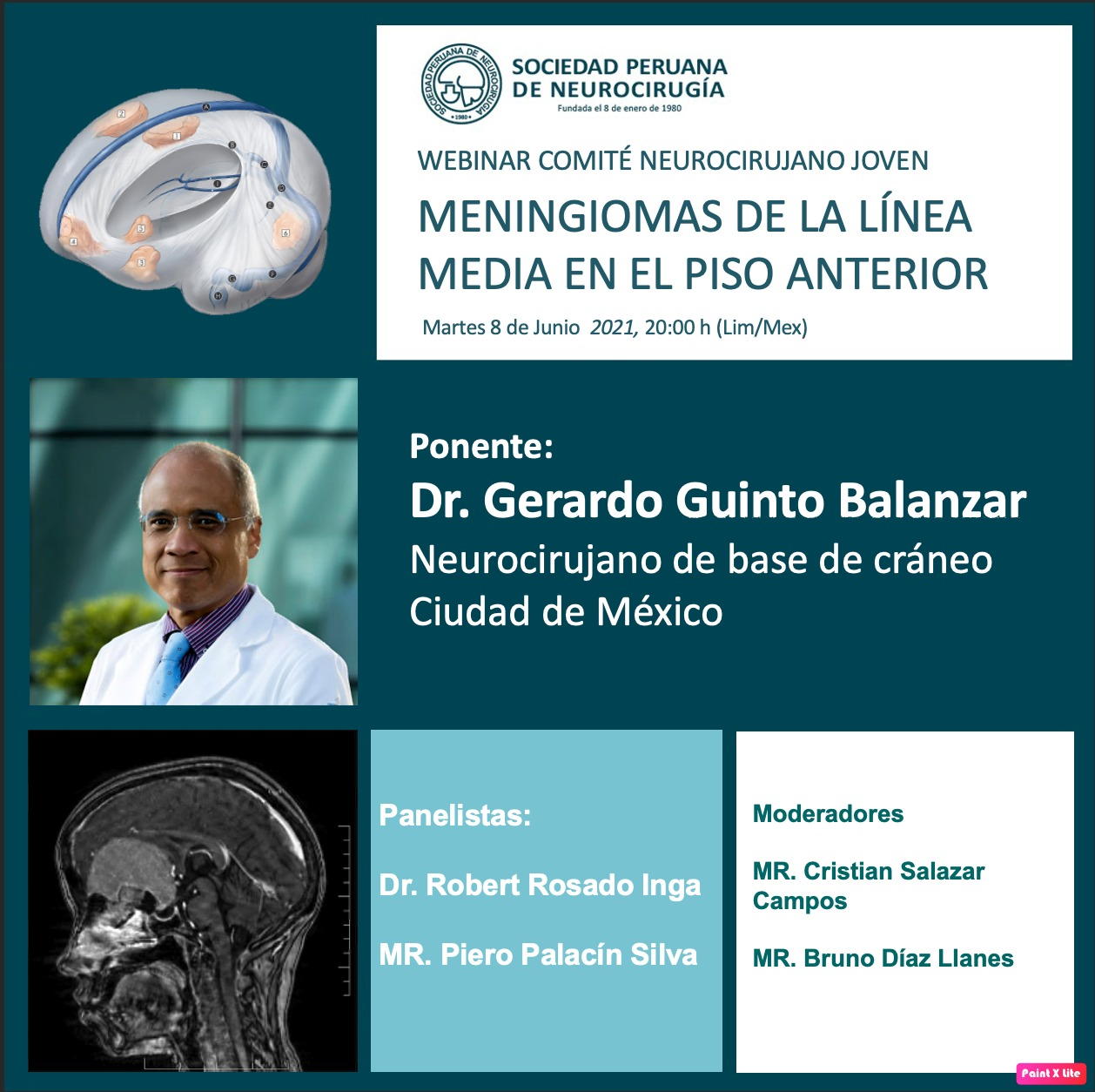 """(GRABADO)……….VIVO…..VIVO……Webcast de la Sociedad Peruana de Neurocirugia, """"Meningiomas de la Linea Media en el Piso Anterior"""", por Dr. Gerardo Guinto Balanzar"""